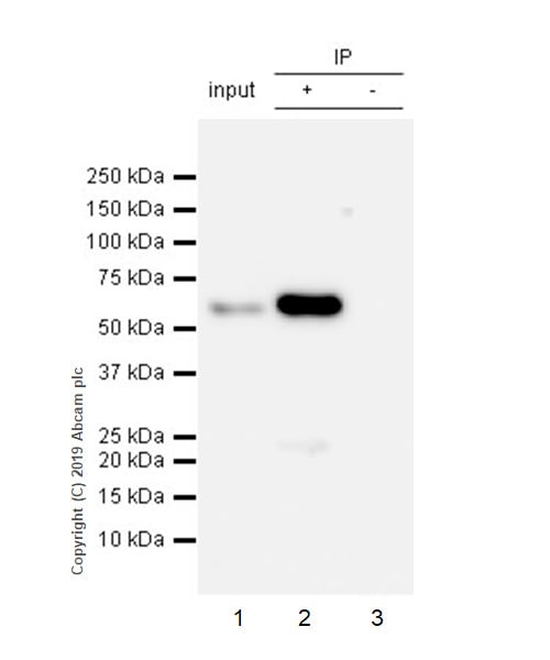 Immunoprecipitation - Anti-SQSTM1 / p62 antibody [EPR23101-103] - BSA and Azide free (ab269458)