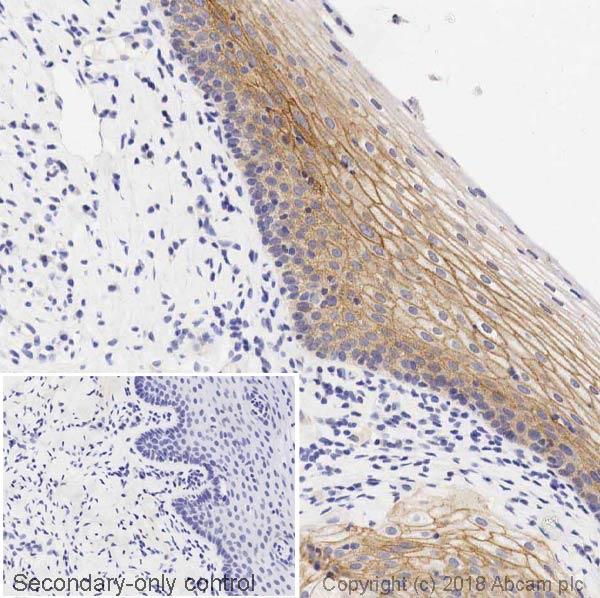 Immunohistochemistry (Formalin/PFA-fixed paraffin-embedded sections) - Anti-gamma Catenin antibody [11E4] - BSA and Azide free (ab269564)
