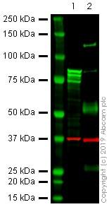 Western blot - Anti-gamma Catenin antibody [11E4] - BSA and Azide free (ab269564)