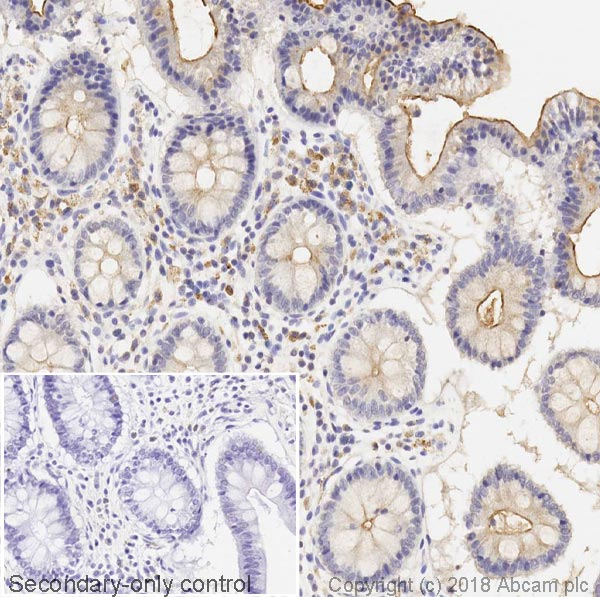 Immunohistochemistry (Formalin/PFA-fixed paraffin-embedded sections) - Anti-MUC13 antibody [C18] - BSA and Azide free (ab269565)