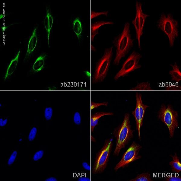 Immunocytochemistry/ Immunofluorescence - Anti-Vimentin antibody [LN-6] - BSA and Azide free (ab269571)