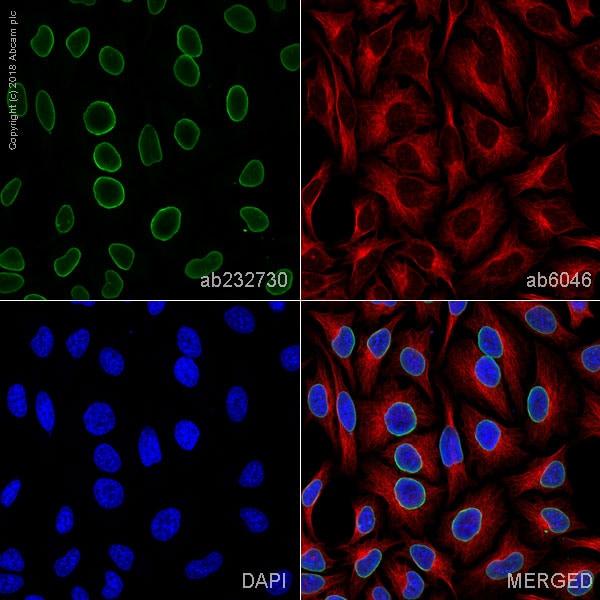 Immunocytochemistry/ Immunofluorescence - Anti-Lamin A + Lamin C antibody [WL4G10] - BSA and Azide free (ab269575)