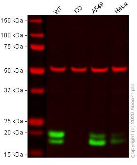 Western blot - Human CAV1 (Caveolin-1) knockout A-431 cell line (ab269583)