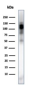 Western blot - Anti-CD11b antibody [ITGAM/3338] (ab269676)