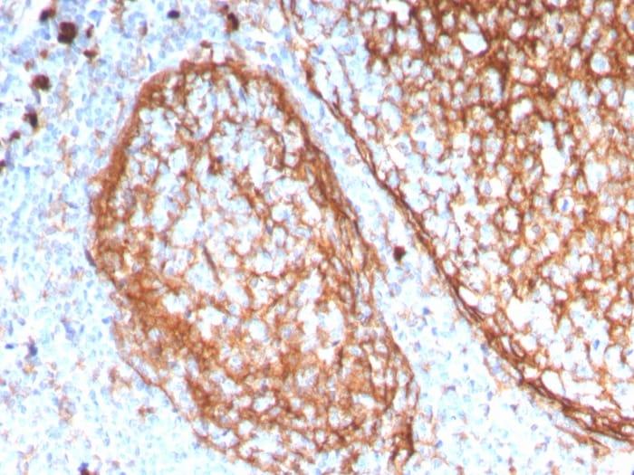 Immunohistochemistry (Formalin/PFA-fixed paraffin-embedded sections) - Anti-CD11b antibody [ITGAM/3338] (ab269676)