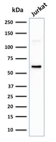 Western blot - Anti-CD63 antibody [LAMP3/2881] (ab269683)