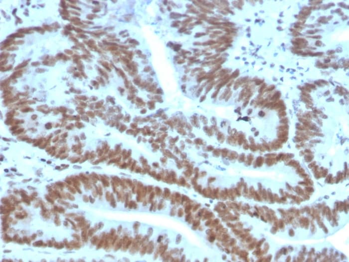 Immunohistochemistry (Formalin/PFA-fixed paraffin-embedded sections) - Anti-Bmi1 antibody [BMI1/2823] (ab269688)
