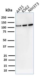 Western blot - Anti-Vinculin antibody [VCL/2575] - BSA and Azide free (ab269690)