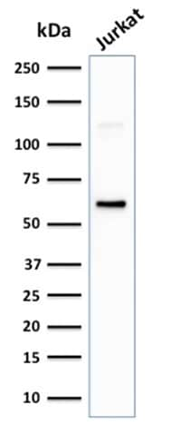 Western blot - Anti-CD63 antibody [LAMP3/2881] - BSA and Azide free (ab269693)