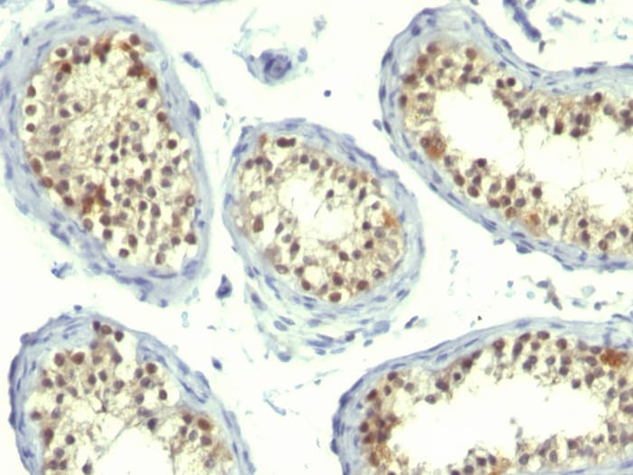 Immunohistochemistry (Formalin/PFA-fixed paraffin-embedded sections) - Anti-Thymidylate Synthase antibody [TS106 + TMS715] - BSA and Azide free (ab269736)