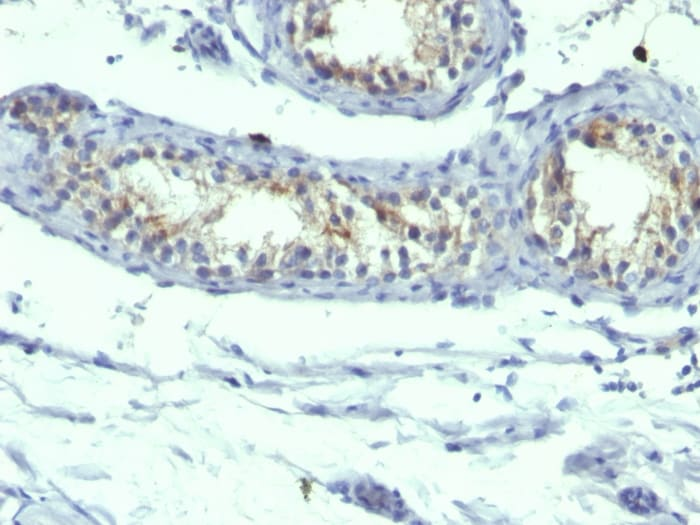 Immunohistochemistry (Formalin/PFA-fixed paraffin-embedded sections) - Anti-Prolactin Receptor/PRL-R antibody [B6.2 + PRLR742] - BSA and Azide free (ab269737)