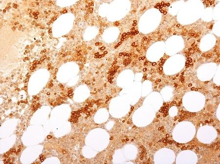 Immunohistochemistry (Formalin/PFA-fixed paraffin-embedded sections) - Anti-Transferrin Receptor antibody (ab269745)