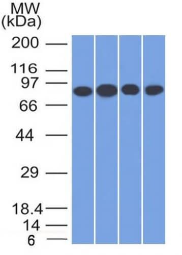 Western blot - Anti-Transferrin Receptor antibody [TFRC/1817] - BSA and Azide free (ab269756)