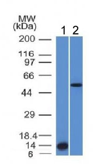 Western blot - Anti-ALK antibody [ALK/1503] - BSA and Azide free (ab269763)