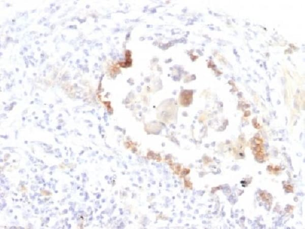 Immunohistochemistry (Formalin/PFA-fixed paraffin-embedded sections) - Anti-Blood Group Lewis y antibody (ab269769)