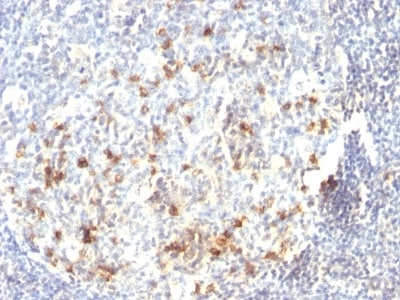Immunohistochemistry (Formalin/PFA-fixed paraffin-embedded sections) - Anti-B3GAT1 antibody (ab269781)
