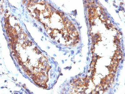 Immunohistochemistry (Formalin/PFA-fixed paraffin-embedded sections) - Anti-CD99 antibody (ab269784)