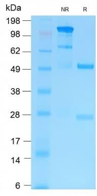 SDS-PAGE - Anti-MMP9 antibody (ab269790)