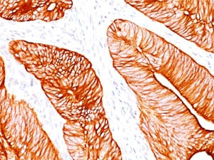 Immunohistochemistry (Formalin/PFA-fixed paraffin-embedded sections) - Anti-Cytokeratin 8 antibody (ab269803)
