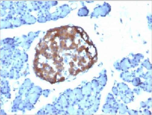 Immunohistochemistry (Formalin/PFA-fixed paraffin-embedded sections) - Anti-Chromogranin A antibody (ab269808)