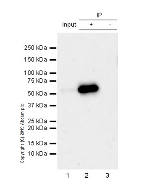 Immunoprecipitation - Anti-Peripherin antibody [EPR23445-28] - BSA and Azide free (ab269861)
