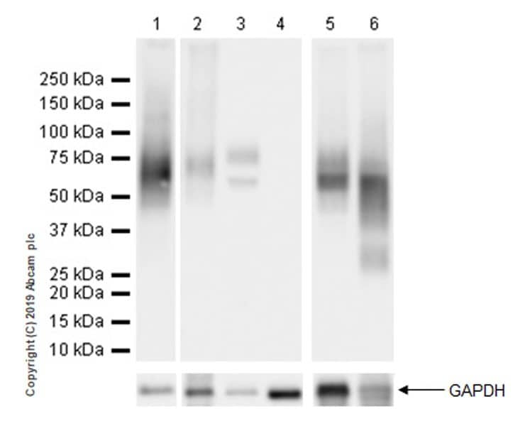 Western blot - Anti-Fibromodulin antibody [EPR23029-174] - BSA and Azide free (ab269866)