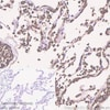 Immunohistochemistry (Formalin/PFA-fixed paraffin-embedded sections) - Anti-Carbonic Anhydrase 1/CA1 antibody [EPR23232-286] - BSA and Azide free (ab269951)