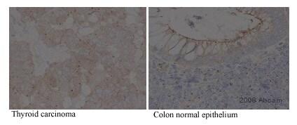 Immunohistochemistry (Formalin/PFA-fixed paraffin-embedded sections) - Anti-gamma Tubulin antibody [TU-30] (ab27074)