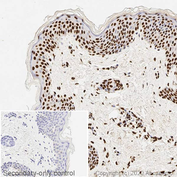 Immunohistochemistry (Formalin/PFA-fixed paraffin-embedded sections) - Anti-ds DNA antibody [35I9 DNA] (ab27156)