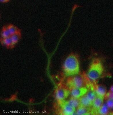 Immunocytochemistry/ Immunofluorescence - Anti-Metabotropic Glutamate Receptor 5 antibody (ab27190)