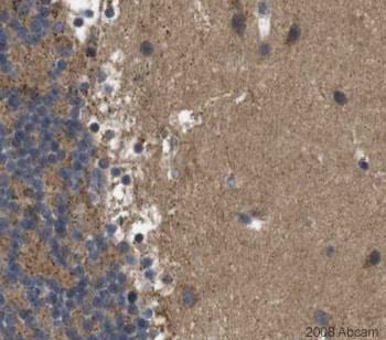Immunohistochemistry (Formalin/PFA-fixed paraffin-embedded sections) - Anti-ERC2 antibody (ab27250)