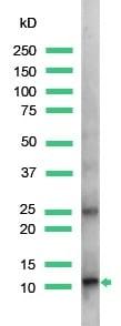 Western blot - Anti-S100A4 antibody, prediluted (ab27427)