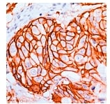 Immunohistochemistry (Formalin/PFA-fixed paraffin-embedded sections) - Anti-ErbB 2 antibody [SP3], prediluted (ab27597)