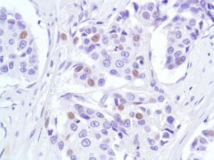 Immunohistochemistry (Formalin/PFA-fixed paraffin-embedded sections) - Anti-p53 antibody [SP5], prediluted (ab27598)