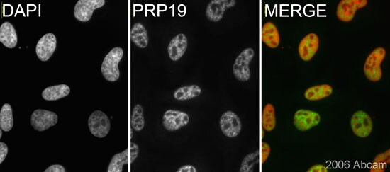 Immunocytochemistry/ Immunofluorescence - Anti-PRP19 antibody (ab27692)