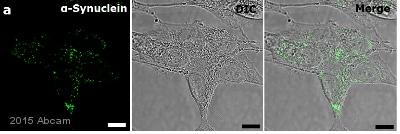 Immunocytochemistry/ Immunofluorescence - Anti-Alpha-synuclein antibody [LB 509] (ab27766)