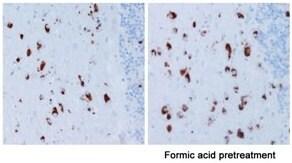 Immunohistochemistry (Formalin/PFA-fixed paraffin-embedded sections) - Anti-Alpha-synuclein antibody [LB 509] (ab27766)