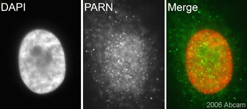 Immunocytochemistry/ Immunofluorescence - Anti-PARN antibody (ab27778)
