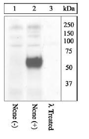 Western blot - Anti-c-Fos (phospho T325) antibody (ab27793)