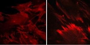 Immunocytochemistry/ Immunofluorescence - Anti-beta Catenin (phospho Y142) antibody (ab27798)