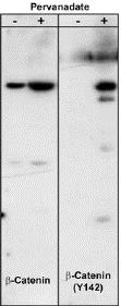 Western blot - Anti-beta Catenin (phospho Y142) antibody (ab27798)