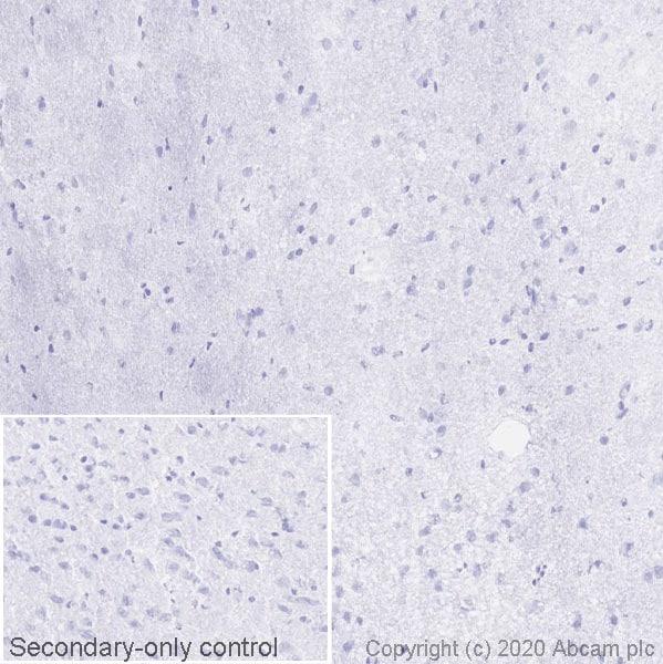 Immunohistochemistry (Frozen sections) - Anti-PLVAP/PV-1 antibody [MECA-32] (ab27853)