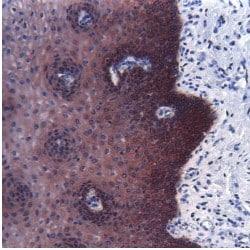 Immunohistochemistry (Formalin/PFA-fixed paraffin-embedded sections) - Anti-pan Cytokeratin antibody [AE1/AE3] (ab27988)
