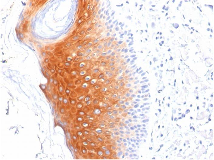 Immunohistochemistry (Formalin/PFA-fixed paraffin-embedded sections) - Anti-Cytokeratin 1 antibody [LHK1] (ab270243)