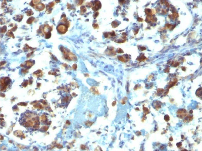 Immunohistochemistry (Formalin/PFA-fixed paraffin-embedded sections) - Anti-MUC3A antibody [M3.1] (ab270247)