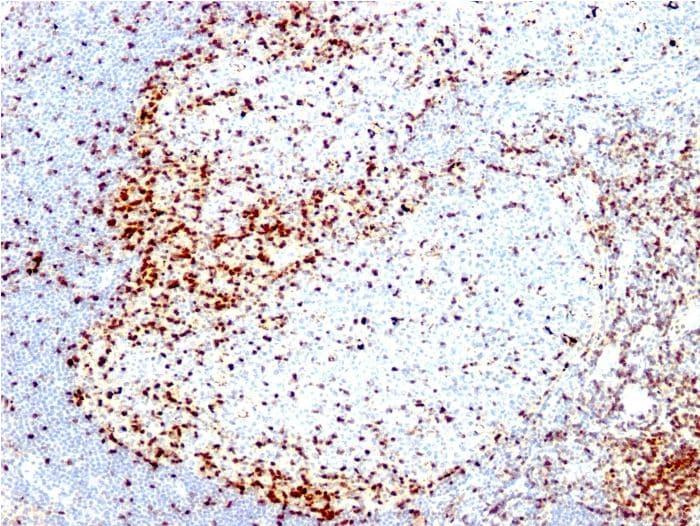 Immunohistochemistry (Formalin/PFA-fixed paraffin-embedded sections) - Anti-ZAP70 antibody [2F3.2] (ab270254)