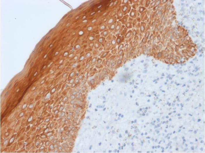 Immunohistochemistry (Formalin/PFA-fixed paraffin-embedded sections) - Anti-Cytokeratin 5 + 6 + 18 antibody [LP34] (ab270259)