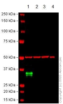 Western blot - Anti-CD74 antibody [CLIP/3127R] (ab270265)