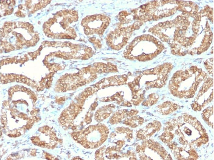 Immunohistochemistry (Formalin/PFA-fixed paraffin-embedded sections) - Anti-Ornithine Decarboxylase/ODC antibody [ODC1/2878R] (ab270268)