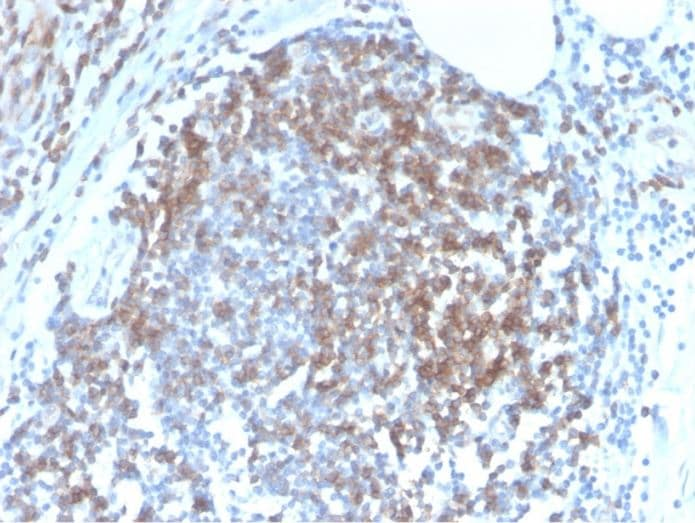 Immunohistochemistry (Formalin/PFA-fixed paraffin-embedded sections) - Anti-CD6/T12 antibody [C6/2884R] (ab270271)